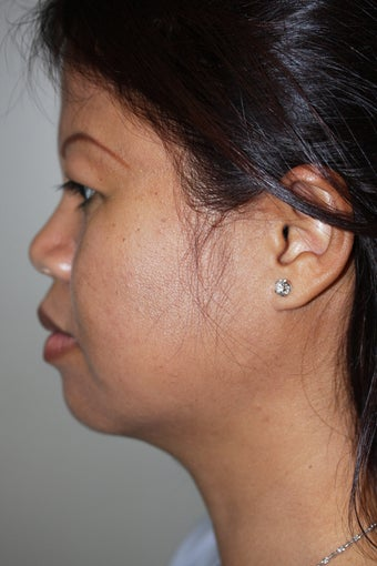 SmartLipo to the neck after 526866