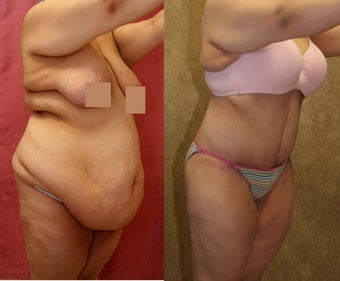 tummy tuck before 304693