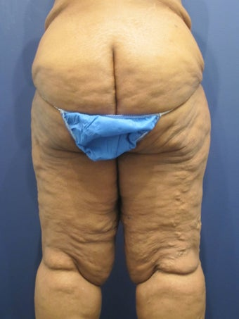 massive weight loss with significant skin excess and laxity of buttock