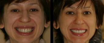 Smile Makeover with Veneers before 58931