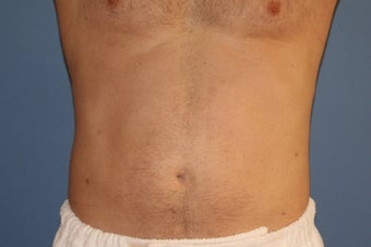 Smartlipo after 91253