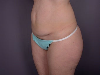 Tummy Tuck  before 306321