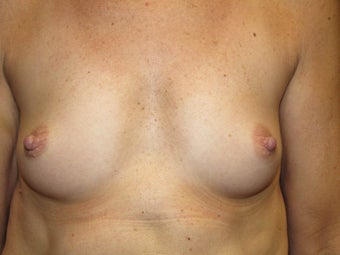 Breast Augmentation before 465611