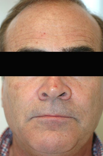 Dysport (Botox) for Forehead Wrinkles, Los Angeles, CA before 424745