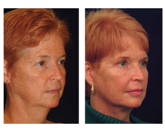 Lower Face & Neck Lift before 349225