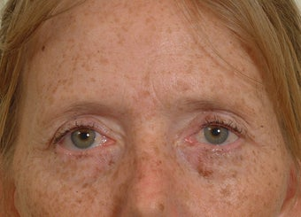Pearl Laser Treatment before 102779