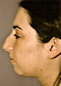 Rhinoplasty before 278373