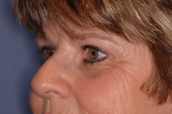 Pretrichial forehead lift and upper blepharoplasty 377313