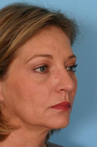 Brow Lift, Blepharoplasty, and Fat Transfer after 86378