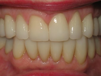 Invisalign and Porcelain veeners after 347772