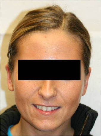 Otoplasty-Uniltaeral (right ear) after 109837