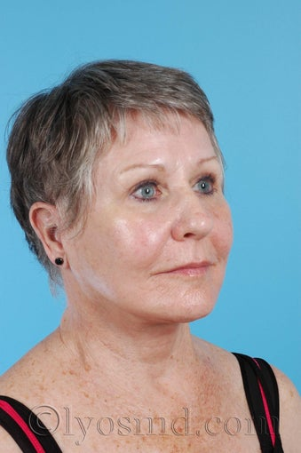Limited Incision Facelift, Upper and Lower Blepharoplasty after 255909