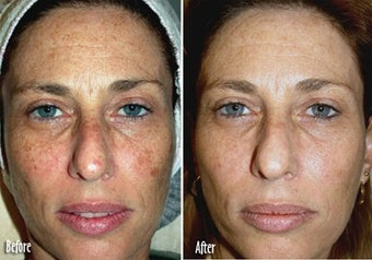 IPL for Freckles, Melasma before 6381