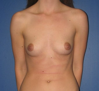 Breast Augmentation before 575297
