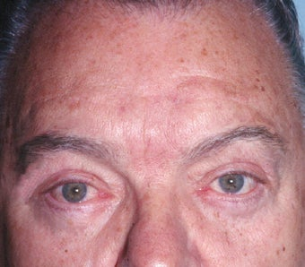 Blepharoplasty after 322229
