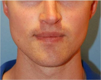 Jaw Implants for Jaw Augmentation after 130941