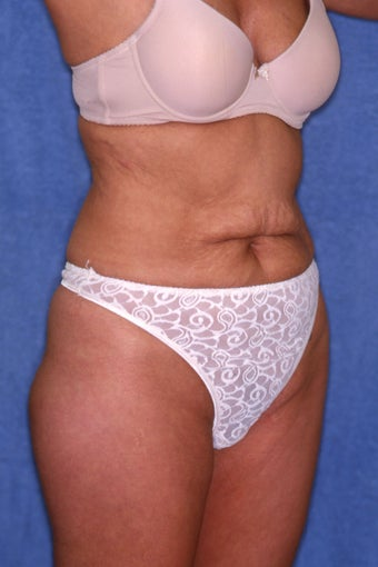Tummy Tuck with Liposuction 411589