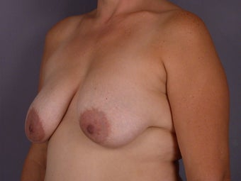 Breast lift and Implants before 306367