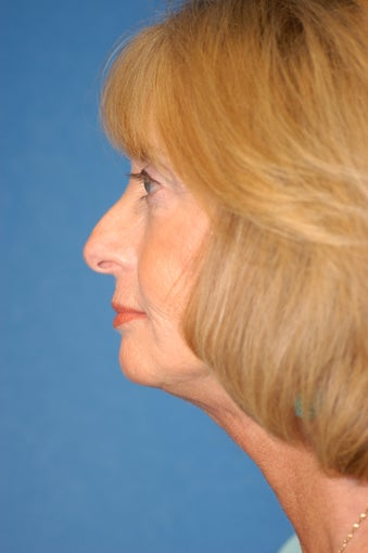 Facelift, Neck Lift and Facial Fat Grafting after 141289