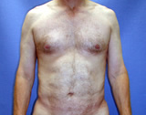 Male Liposuction of the back and abdomen  after 125015