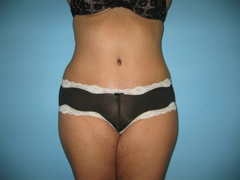 tummy tuck after 307362