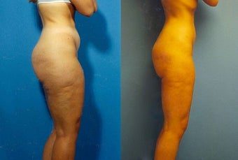 Liposuction before 636185