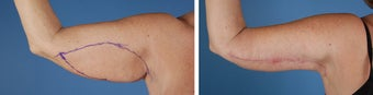 Arm Lift (Brachioplasty) after 303695