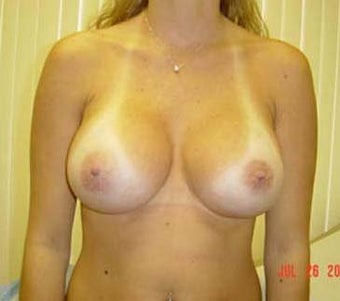 Breast Augmentation  after 131651