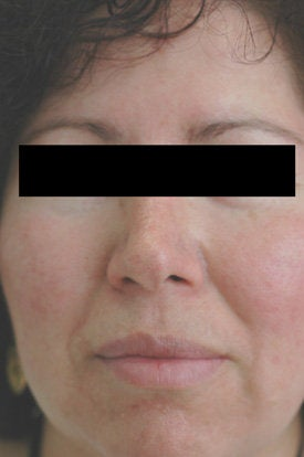 Laser Treatments for Rosacea after 106561