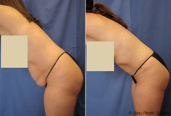 Mommy Makeover (Tummy Tuck) before 146923