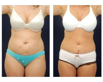 Abdominoplasty - Tummy Tuck before 396151