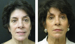Liquid Facelift - fillers before 603989