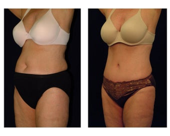 Tummy Tuck / Abdominoplasty before 54970
