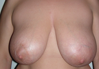 Breast Reduction before 391010