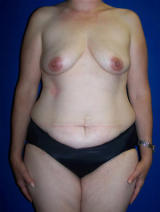 Extended Tummy Tuck (abdominoplasty) and Saline Implants before 128665