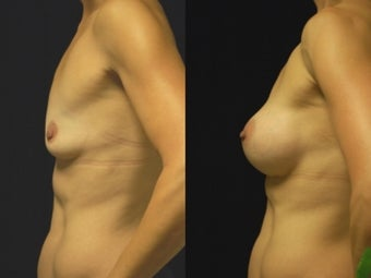 Breast augmentation, gel implants 462159