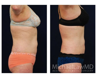 Liposuction 629035