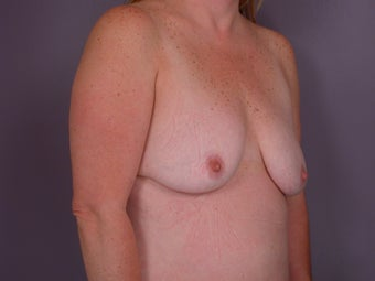 Breast Lift / Breast Augmentation before 291097