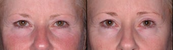 Ulthera Laser Skin Tightening before 346270