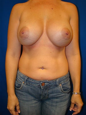 Breast Augmentation Surgery after 146350