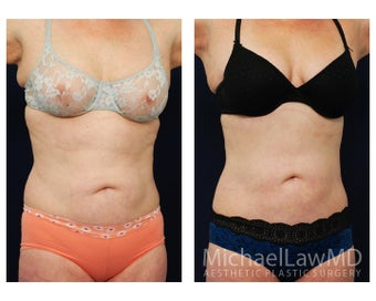Liposuction after 629035