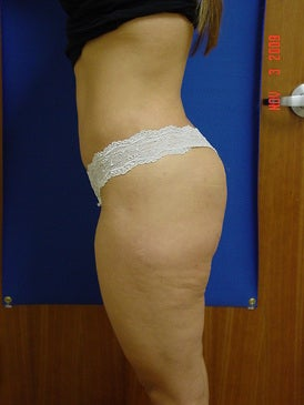 Brazilian Butt Lift/Liposuction 393405
