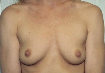 Breast Augmentation before 266794