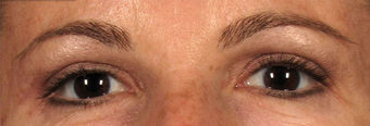 Upper Eyelidplasty with TCA Peel Lower Lids after 420542