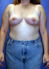 Breast Reduction Surgery after 120104