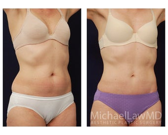 Abdominoplasty - Tummy Tuck after 396048