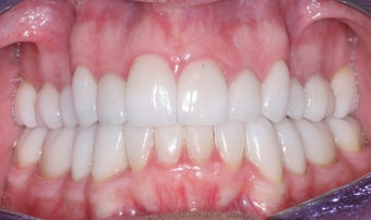 Smile makeover with Invisalign and Crowns after 372753