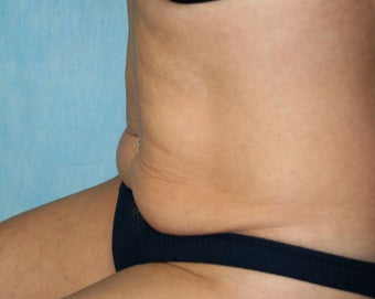 Local Anaesthetic Tummy Tuck 344435