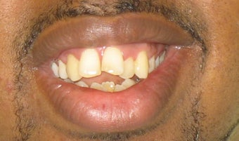 Braces: correction of openbite and dental crowding before 346378