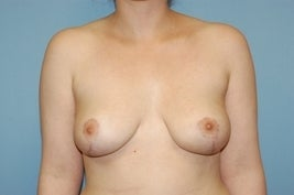 Breast Reduction after 616389